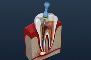 歯の根・神経の治療