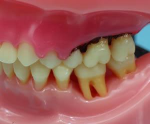 子供 歯磨き しない